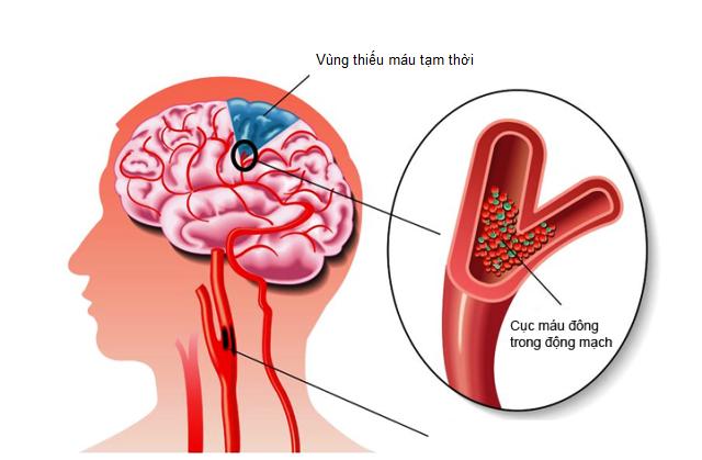 Nguyên nhân và nguyên lý điều trị thiếu máu não