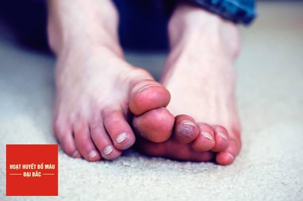Tổn thương do lạnh có thể gây tấy đỏ và mất cảm giác vùng tiếp xúc