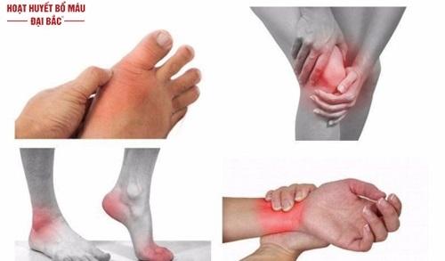 Hay nhức mỏi tay chân là bệnh gì