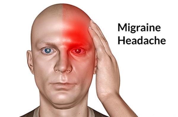 Bệnh đau nửa đầu Migrane