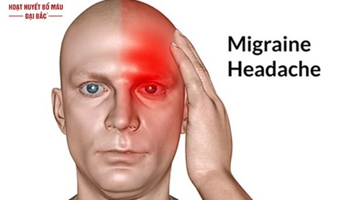 Thuốc điều trị đau nửa đầu migraine