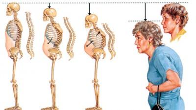 Image result for bệnh loãng xương ở phụ nữ
