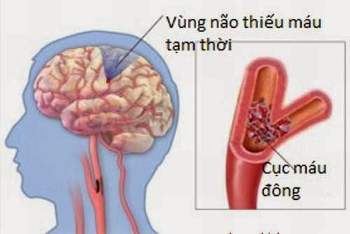 Thiểu năng tuần hoàn máu não vì sao