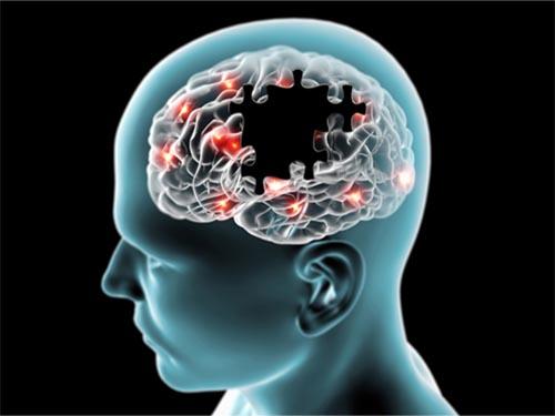 Bệnh Alzheimer là bệnh do sự thoái hóa thần kinh tiến triển, thường gặp ở người cao tuổi