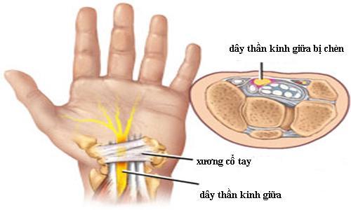 Triệu chứng của bệnh đau tê vùng cổ bàn tay.