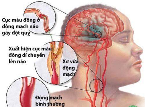 Vì sao hiện tượng chóng mặt buồn nôn có thể gây đột quỵ? 1