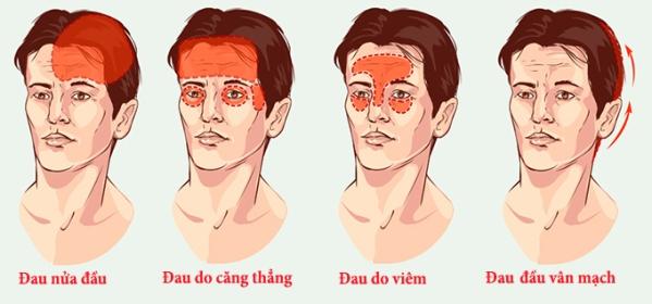 Nguyên nhân đau đầu vận mạch là gì?