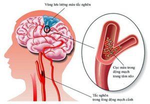 Những nguyên nhân đau đầu chóng mặt buồn nôn