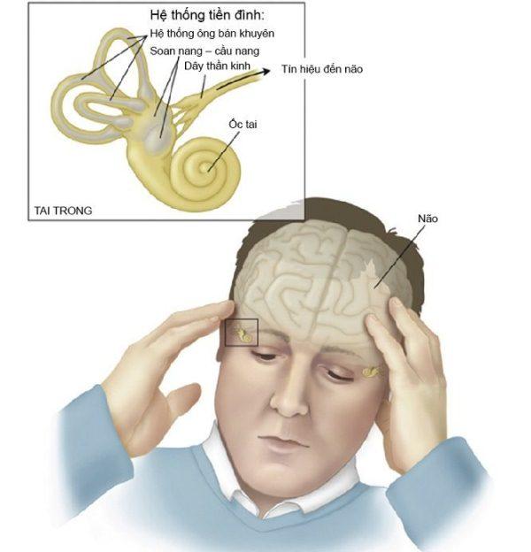 Rối loạn tiền đình gây mất ngủ