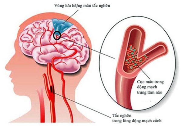 Điều trị thiếu máu não thoáng qua hiệu quả, an toàn