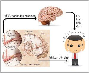 Rối loạn tuần hoàn não và rối loạn tiền đình