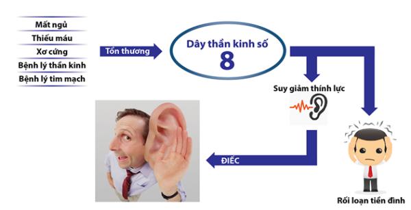 Vì sao rối loạn tiền đình giảm thính lực?
