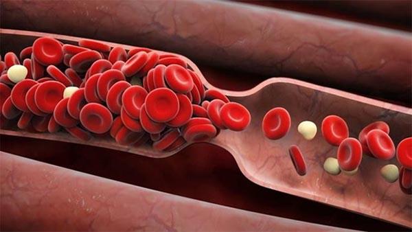 Lưu thông máu kém sẽ khiến nhiều cơ quan trong cơ thể bị thiếu máu