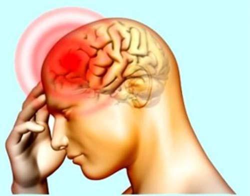 Đau đầu vận mạch gây nên những cơn đau đầu dữ dội