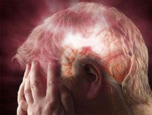 Thiếu máu não là gì? Nguyên nhân, triệu chứng, cách điều trị