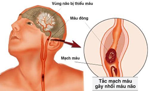 Tắc mạch máu não