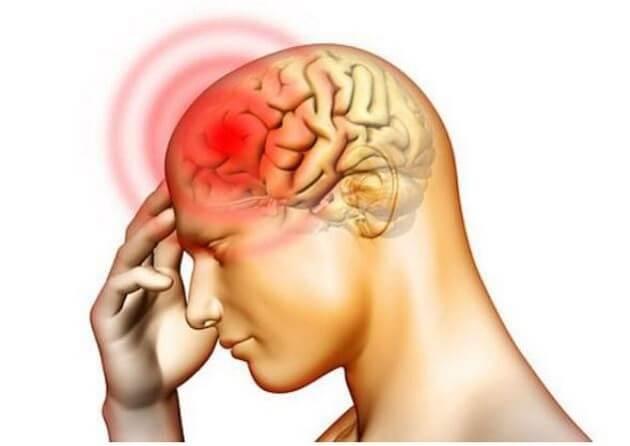 Điều trị thiếu máu não