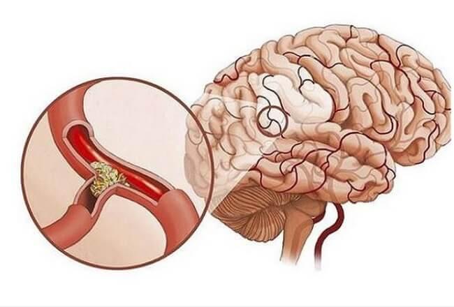 Thiếu máu não gây ảnh hưởng nghiêm trọng đến sức khỏe