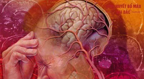Bệnh rối loạn tuần hoàn não là gì