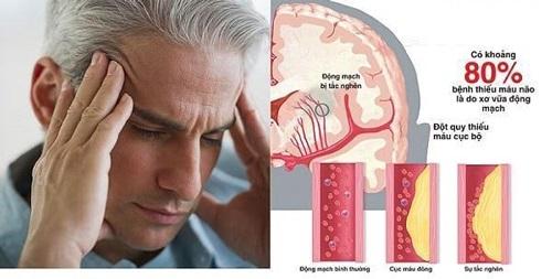 Bệnh thiểu năng tuần hoàn não là gì