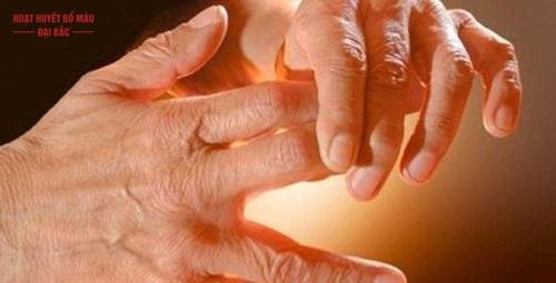 Triệu chứng chân tay tê mỏi là bệnh gì