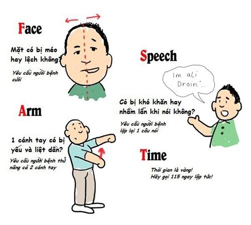 4 dấu hiệu tai biến mạch máu não nặng và nhẹ