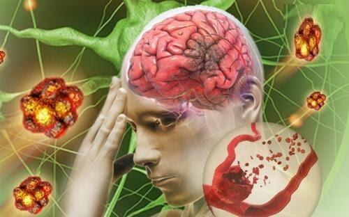 Bệnh học tai biến mạch máu não là gì