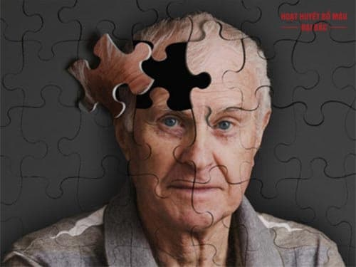 bệnh alzheimer là gì