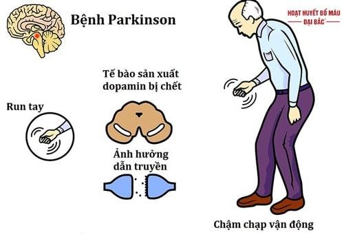 Bệnh Parkinson triệu chứng