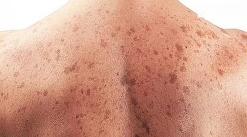 Bệnh lý ung thư da như thế nào