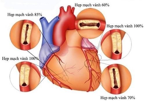 Bệnh thiếu máu cơ tim cục bộ là gì