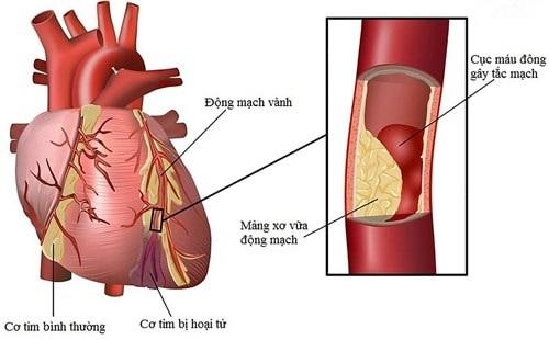 Bệnh thiếu máu cơ tim là gì