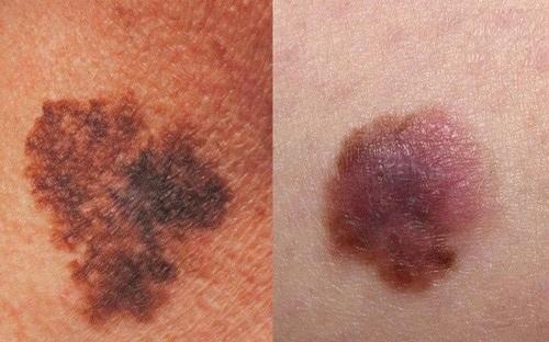 Bệnh ung thư da là như thế nào