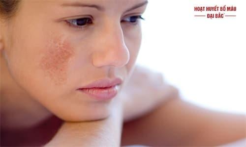 Da mặt bị sạm vàng