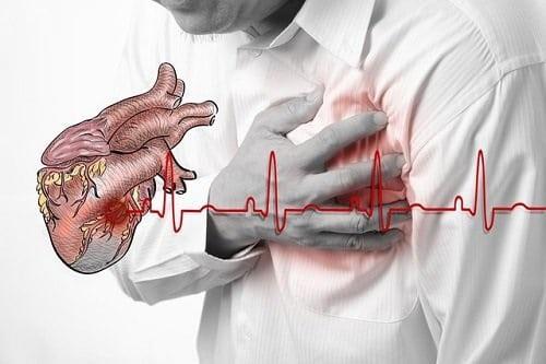 Dấu hiệu bệnh thiếu máu cơ tim là gì