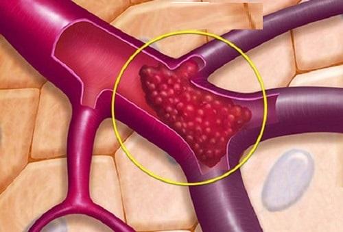 Nguyên nhân bị thiếu máu cơ tim ở người trẻ