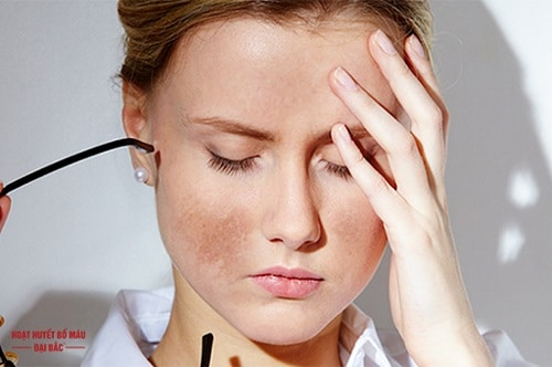 Nguyên nhân gây sạm da mặt