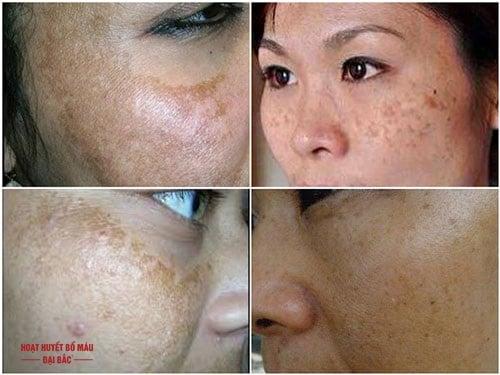 Tại sao da mặt bị sạm đen