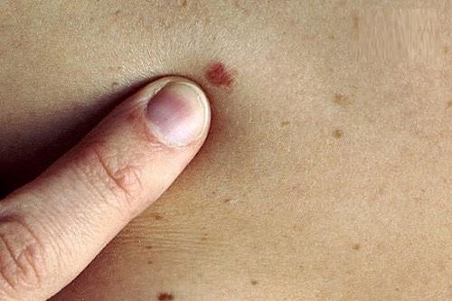 Ung thư da trên mặt