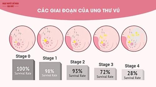 Bị ung thư vú các giai đoạn