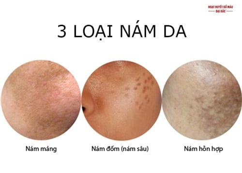 Các loại nám da mặt