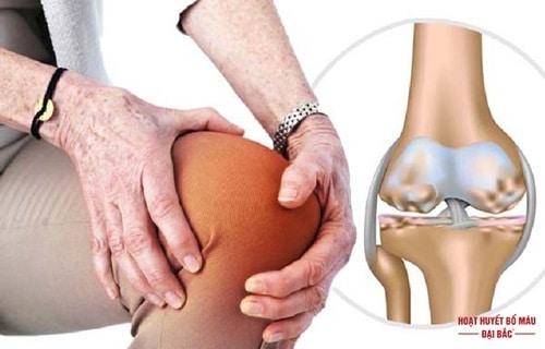 Thuốc trị đau nhức xương khớp cho người già