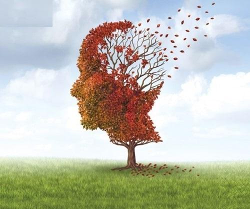 hội chứng mất trí nhớ tạm thời
